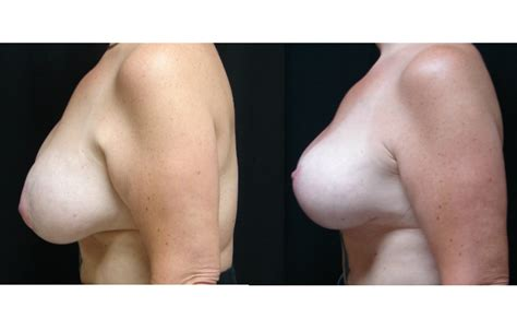 Breast augmentation before and after photos virginia beach jpg 725x447